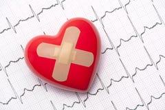 Coeur avec l'emplâtre adhésif sur l'électrocardiogramme ECG, électrocardiogramme Photo libre de droits