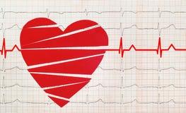 Coeur avec l'essai d'électrocardiogramme à l'arrière-plan, Photos stock