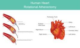 Coeur Diamond Angioplasty Illustration Infographic illustration stock