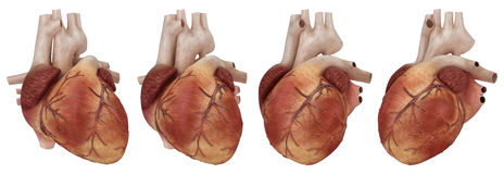 Coeur humain et artères coronaires Image libre de droits