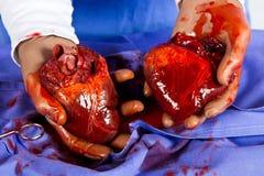 Coeurs de la prise deux de docteur dans le bleu Images stock