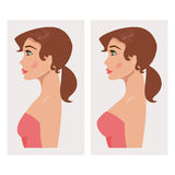 Coffre avant et après le plastique Illustration de vecteur illustration libre de droits