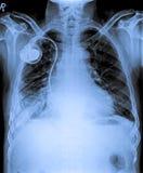 Coffre X Ray avec le fabricant de pas images libres de droits
