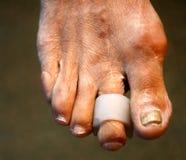 Cojines interdigitales particiones pie Maíz en los dedos del pie Curvatura de fingeres Cojín interdigital del maíz imagen de archivo