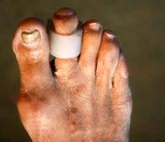 Cojines interdigitales particiones pie Maíz en los dedos del pie Curvatura de fingeres Cojín interdigital del maíz imagen de archivo libre de regalías