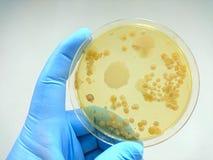 Colônia das bactérias na placa do meio de cultura imagens de stock