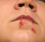 Cold sores Stock Photography