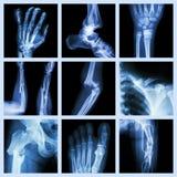 Coleção da fratura de osso imagens de stock royalty free
