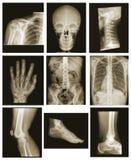 Colección de la radiografía Fotos de archivo