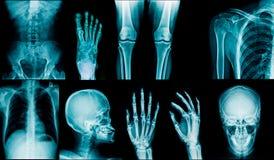 Colección de la radiografía imagen de archivo libre de regalías