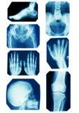 Colección de la radiografía Fotografía de archivo libre de regalías