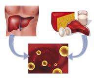 Colesterol y hígado Imágenes de archivo libres de regalías
