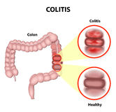 Colitis Royalty Free Stock Image