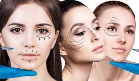 Collage av den härliga kvinnan får skönhetansiktsbehandlinginjektioner fotografering för bildbyråer