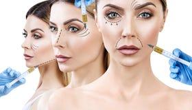 Collage av den härliga kvinnan får skönhetansiktsbehandlinginjektioner arkivfoton