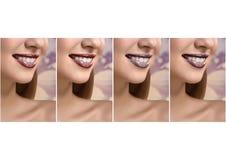 Collage av härliga kvinnor som tätt ler upp skott Fotografering för Bildbyråer
