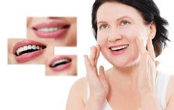 Collage av sunt le folk Härlig mellersta ålderkvinna med vita fanér och perfekt leende Tand- medicin för tandomsorg arkivfoto
