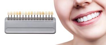 Collage av tandpaletten med att göra vit kvinnliga tänder fotografering för bildbyråer