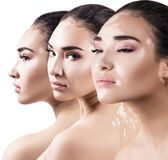 Collage of beautiful woman with vitiligo disease. Stock Images