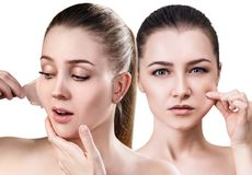 Woman remove her old dry skin from face. Collage of beautiful women remove her old dry skin from face. Over white background Royalty Free Stock Image