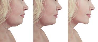 Collage cascante di ringiovanimento del bello doppio mento della donna prima e dopo le procedure della liposuzione immagini stock