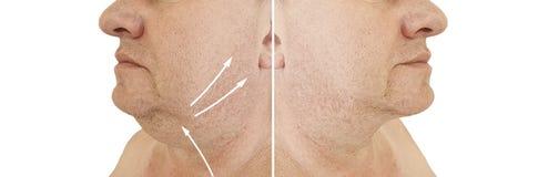 Collage cascante di sollevamento di obesità di trattamento del doppio mento maschio prima e dopo il trattamento estetico di plast fotografia stock