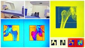 Collage colorido de la exploración de la densidad del hueso foto de archivo libre de regalías
