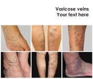 Collage dalle immagini delle vene varicose Fotografia Stock