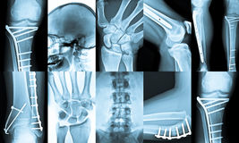 Collage de la radiografía Imagenes de archivo