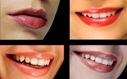 Collage de los labios imagen de archivo