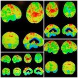 Collage del modelo de la demencia del ct Alzheimer del animal doméstico fotos de archivo libres de regalías