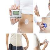Collage della pompa dell'insulina Fotografie Stock Libere da Diritti