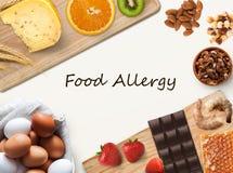 Collage di alimento allergico, isolato su bianco Immagine Stock
