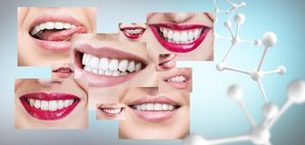 Collage of healthy teeth with big molecule chain. Dental health concept Royalty Free Stock Photos