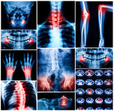 Collage of human X-rays photo Stock Photos