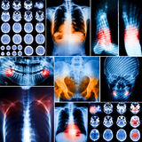 Collage of human X-rays photo Royalty Free Stock Photos