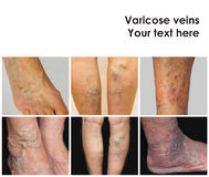 Collage from images of varicose veins. The collage from images of varicose veins on a legs of old woman and senior man Stock Photography