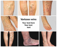 Collage from images of varicose veins. The collage from images of varicose veins on a legs of old woman and senior man Royalty Free Stock Image