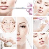 A collage of images with young woman on a botox procedure