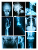Collage of many X-rays Royalty Free Stock Images