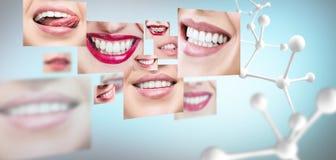 Collage van gezonde tanden met grote moleculeketting Stock Fotografie