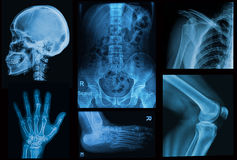 Collage  x-rays image of human Royalty Free Stock Photos