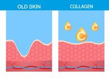 Collageen, medische anatomie van het huid de vectorscheelzien vector illustratie