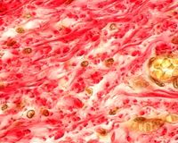 Collagen fibers. Numerous bundles of collagen fibres selectively stained in red. Submucosa layer of the esophagus, Van Gieson method royalty free stock image