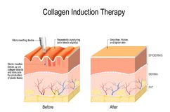 Collagen induction therapy. microneedling the skin. Collagen induction therapy microneedling is a surgical for remove wrinkles, scars, stretch, marks stock illustration