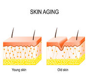 Collagen in younger and older skin. collagen in younger and olde. Aging skin. Cross section young and old skin. The diagram showing the decrease in collagen and Stock Image