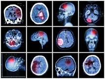 Collection of brain disease Stock Images