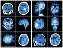Collection of brain disease Stock Photography