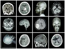 Collection of brain disease. ( CT scan and MRI of brain : show cerebral infarct , intracerebral hemorrhage , brain tumor , basal ganglia hemorrhage ( status Stock Photo