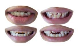 Collection de la dent de quatre enfants Image libre de droits